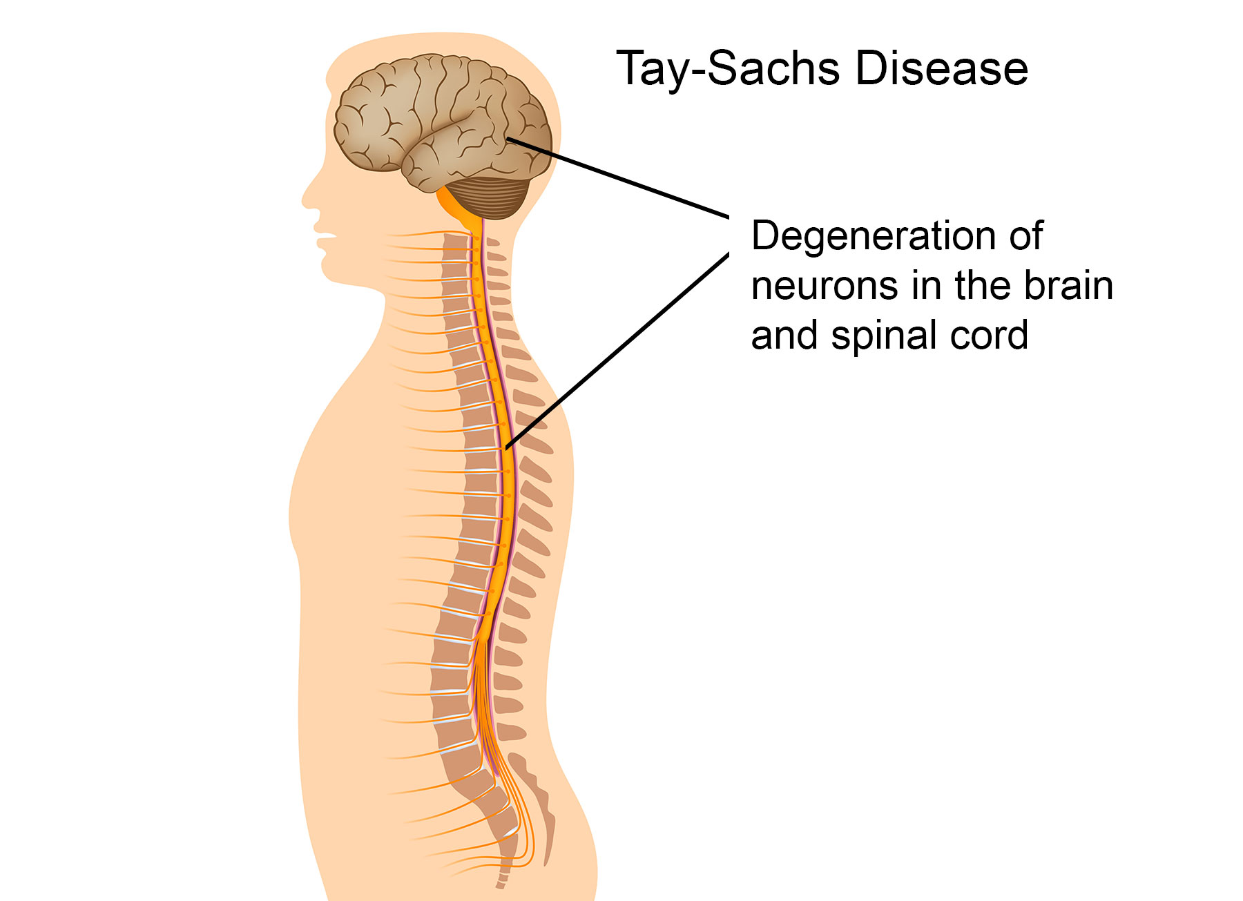 a paper on what is tay sachs disease Tay–sachs disease is a rare recessively inherited disease of brain lipid metabolism it is one of the best known lysosomal storage diseases because of its striking.